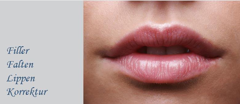 Filler Falten Lippen